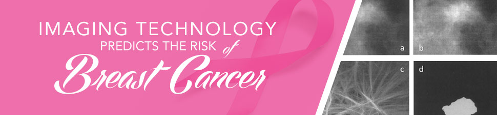 Imaging Technology Predicts the Risk of Breast Cancer